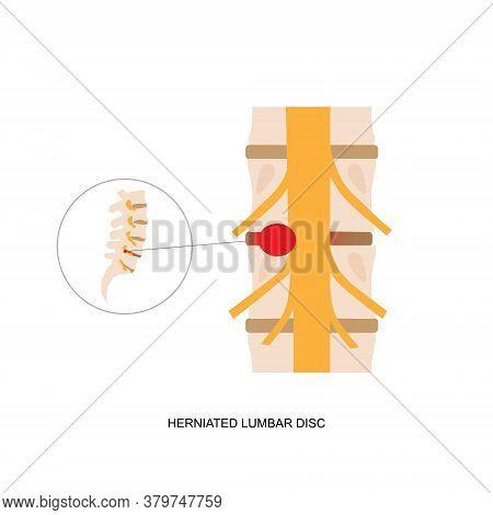 Vector Illustration Of Herniated Lumbar Disc. Herniated Lumbar Disc Causing Low Back Pain And Sciati