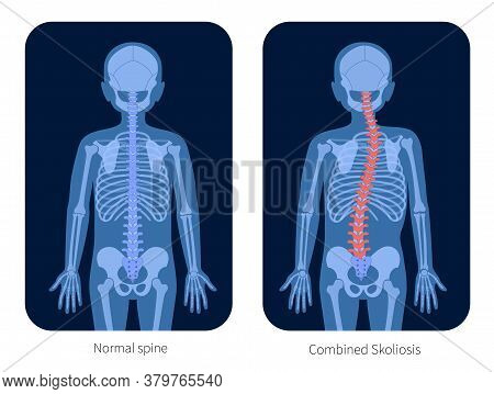 Normal Spine And Combined Scoliosis In Boy Body. Xray Flat Vector Illustration. Backbone, Joint And
