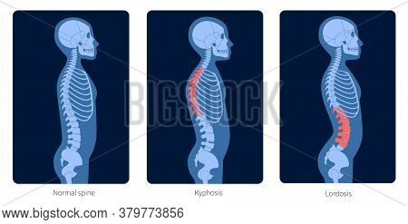 Normal Spine, Lordosis And Kyphosis. Scoliosis In Child Body. Xray Flat Vector Illustration. Backbon