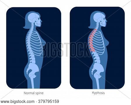 Normal Spine And Kyphosis In Woman Body. Xray Flat Vector Illustration. Backbone And Skeleton Anatom