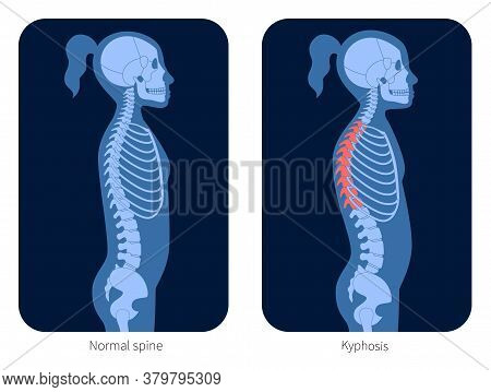 Normal Spine And Kyphosis In Girl Body. Xray Flat Vector Illustration. Backbone And Skeleton Anatomy