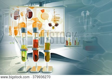 Urine Sample Test For Crystals Or Protein In Urine Proteinuria - Test Tubes In Modern Microbiology R