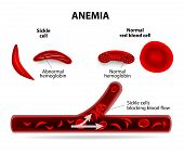 anemia. sickle cell and normal red blood cell poster