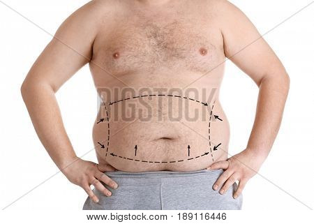 Weight loss concept. Man with marked fat problem areas on body, white background