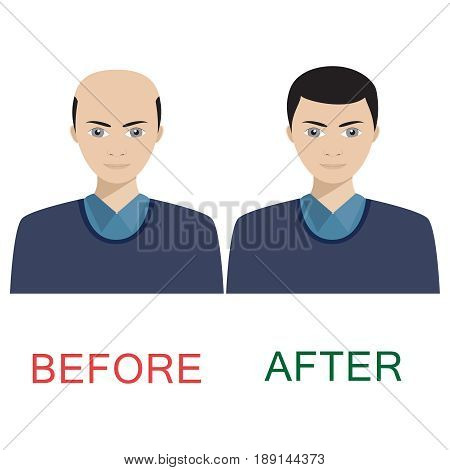 Man with alopecia before and after hair treatment and transplantation.