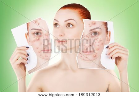 acne problems red haired woman portrait on green