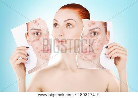 acne problems red haired woman portrait on blue