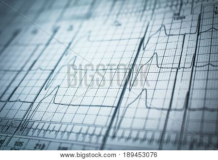 Strip of a holter electrocardiogram trace of a patient with cardiac pacemaker with malfunction