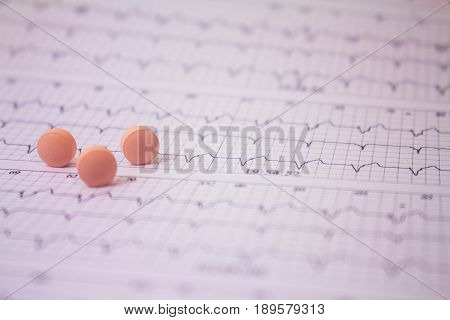 Electrocardiogram chart holter of a patient with pacemakers and some pills