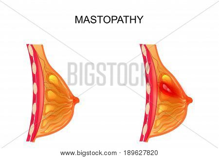 vector illustration of a breast. healthy and diseased mammary gland