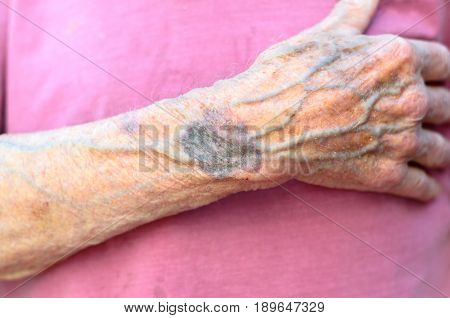 Hand Of An Old Man Clasping His Chest