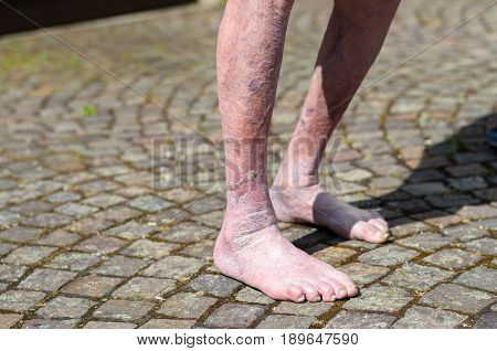 Leg Of An Old Person With Circulatory Problems