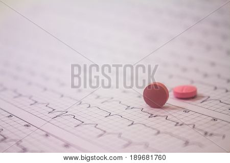 Background of a three-channel holter electrocardiogram of a patient with cardiac pacemaker and two pills