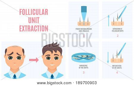Male hair loss treatment with follicular unit extraction. Stages of FUE procedure. Alopecia infographic medical design template for transplantation clinics and diagnostic centers. Vector illustration. poster