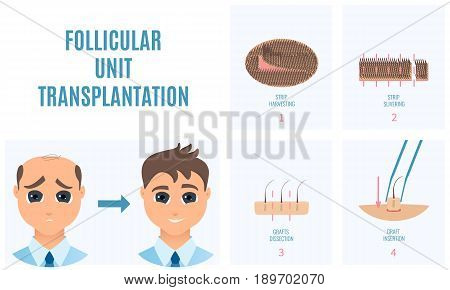 Male hair loss treatment with follicular unit transplantation. Strip method. Stages of FUT procedure. Alopecia medical template. Clinics and diagnostic centers concept design. Vector illustration.