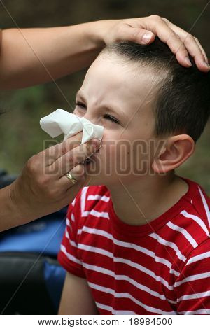 Child blowing nose. Child with tissue. catarrh or allergy poster