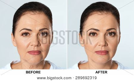 Mature woman before and after biorevitalization procedure on light background. Cosmetic surgery poster
