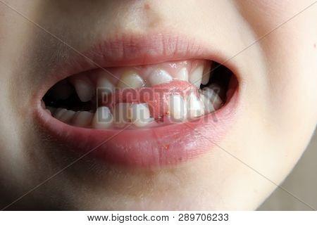 Child Missing Tooth. Kid Missing One Tooth. Gap Between Kids Teeth.