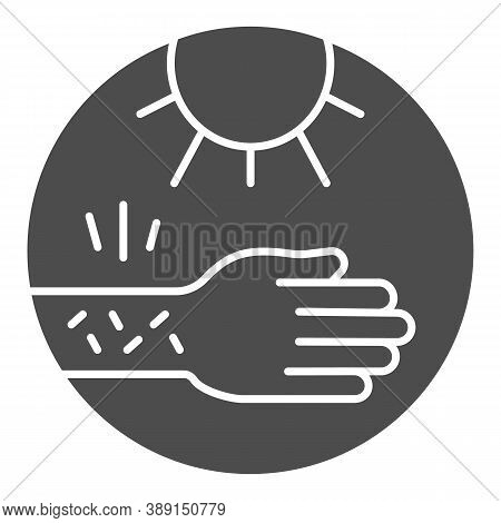 Hand With Irritate Skin And Sun Solid Icon, Allergy Concept, Allergy To Sunburn Sign On White Backgr