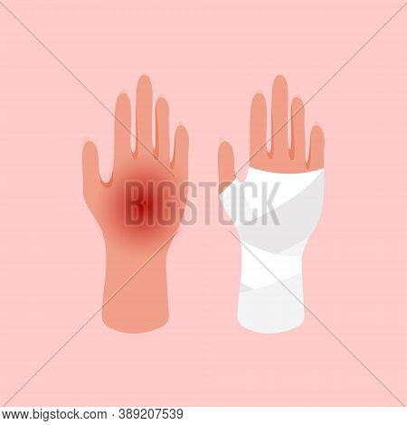 Injured Hand Of The Girl Tied Up By White Bandage. Broken, Cut, Injured Hand. First Aid For Bruises,