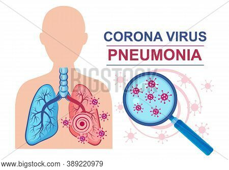 Corona Virus Pneumonia Disease Sign. Lungs Infection. Normal And Affected Lung Against Of Male Silho