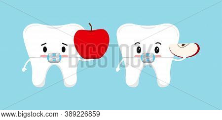 Cute White Tooth With Dental Braces And Apple Icon Set. Sad Tooth With Whole Apple And Happy With Pa