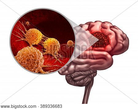 Brain Cancer Anatomy Concept And Malignant Tumor Or Tumour Symbol As A Neurology Body Part With A Mi