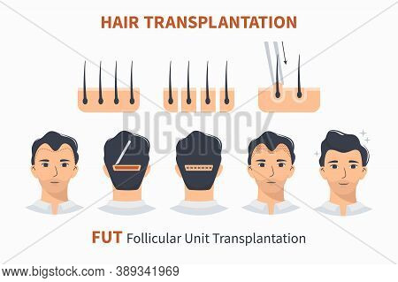 Stages Of Hair Transplantation Fut Follicular Unit. Treatment Surgery Of Baldness, Alopecia, Mens Ha
