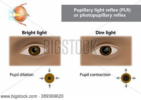 Pupillary Light Reflex Plr Or Photopupillary Reflex. How Do Pupils Change In Size With Dim And Brigh