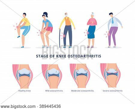 Banner With Stages Knee Osteoarthritis And People Suffering From Leg Pain