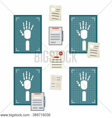 X-ray Of Human Hand. Fracture Analysis. Human Injury. Medical Care In Hospital. Health Problem. Cart