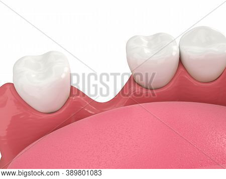3d Render Of Jaw Bone Recession After Loosing Tooth Over White