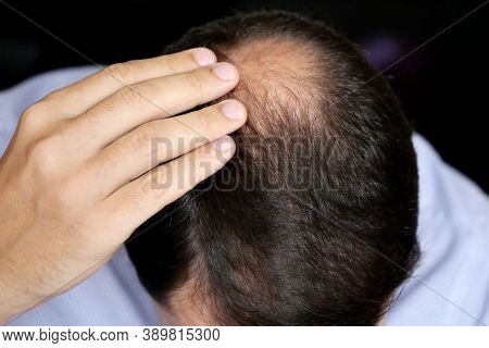 Baldness, Man Concerned About Hair Loss. Male Head With A Bald