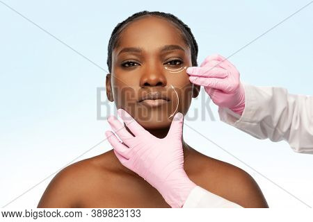 beauty, plastic surgery and aesthetic medicine concept - portrait of beautiful young african american woman with lifting arrows on face and hands in medical gloves over blue background