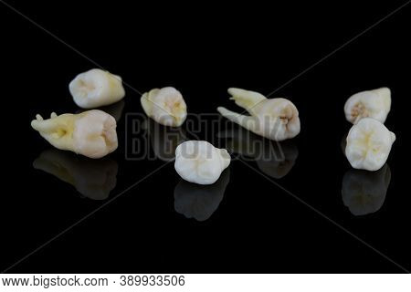 Torn Human Teeth On A Black Background. Close-up Photo Of Spoiled Molars And Premolars. Selective Fo