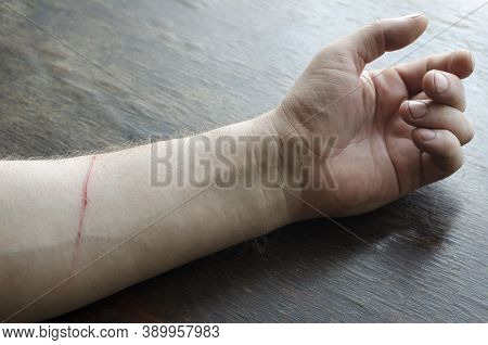 Hand Adult Male With A Wound On His Forearm. The Domestic Cat Scratched The Man. Caucasian Male, Age