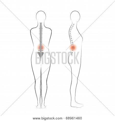 Vector woman body shape. Vertebrae pain.