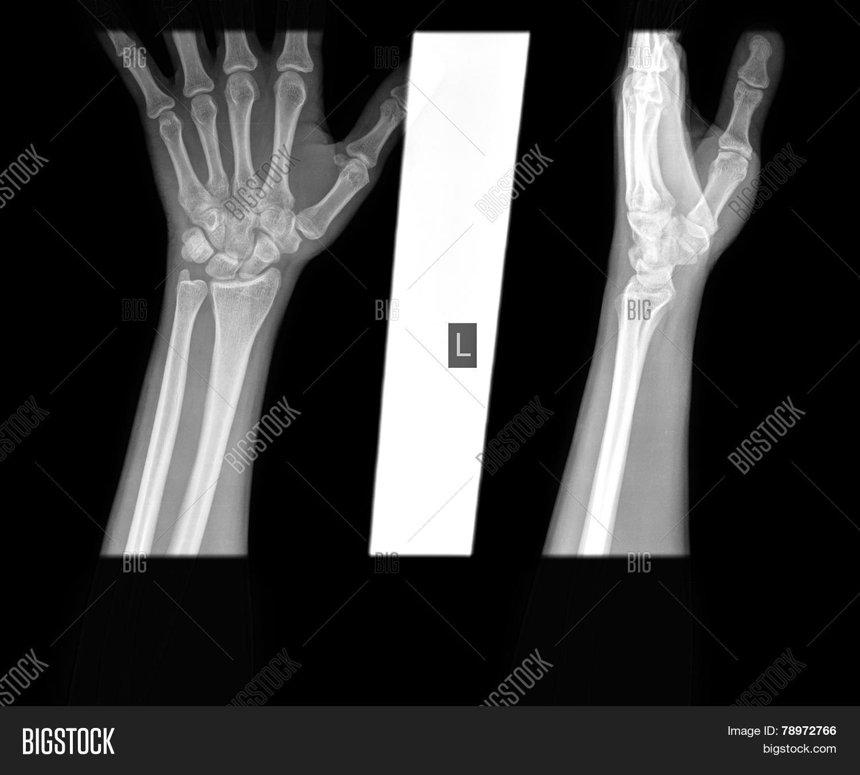 Hand Wrist X-ray, Image & Photo (Free Trial) | Bigstock