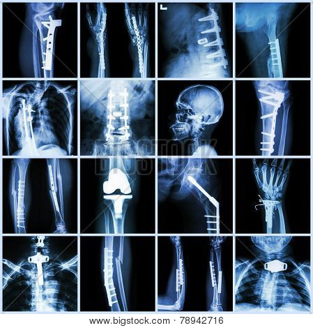 Collection X-ray Orthopedic Surgery