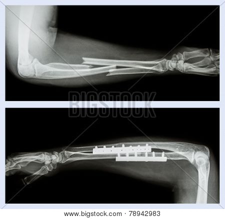 Upper Image : Fracture Ulnar And Radius (forearm Bone) , Lower Image : It Was Operated And Internal
