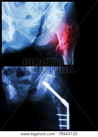 Intertrochanteric Fracture Left Femur (fracture Thigh's Bone).