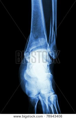 film x-ray ankle show fracture distal tibia and fibula (leg's bone)