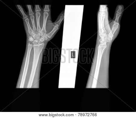 Hand Wrist X-ray, Scaphoid Fracture