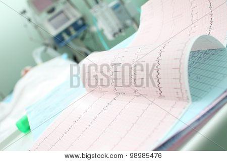 Analyzing Patient's Ecg In Icu