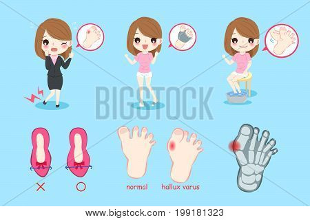 woman with hallux varus on the blue background