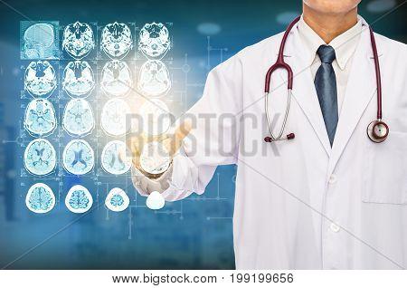 Radiologist doctor touching film brain MRI at hospital.