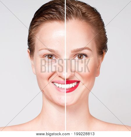 Woman Before And After Cosmetic Or Plastic Procedure