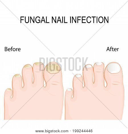 fungal nail infection. Onychomycosis or tinea unguium is a fungal infection of the nail. Before and after Renewal Treatment. Restore healthy nail appearance.