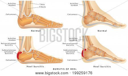 Heel Bursitis. Foot with normal heel and the foot with Haglund's deformity and bursitis