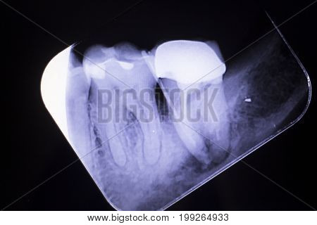 Tooth Crown Root Canal